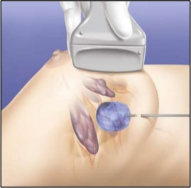 Ablative Therapy for Breast